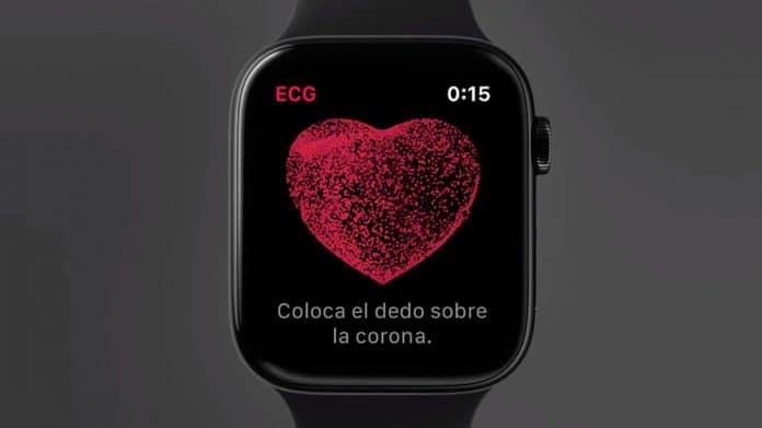 Que es un electrocardiograma